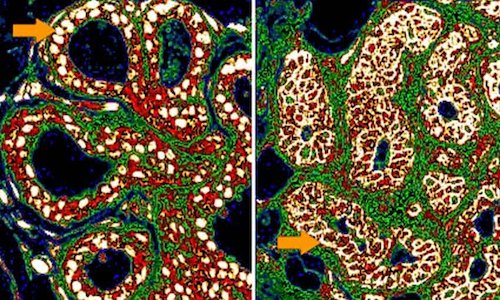 Researchers used micrographs of non-recurrent (left) and recurrent breast cancer (right) to train computers to recognize differences between the two.